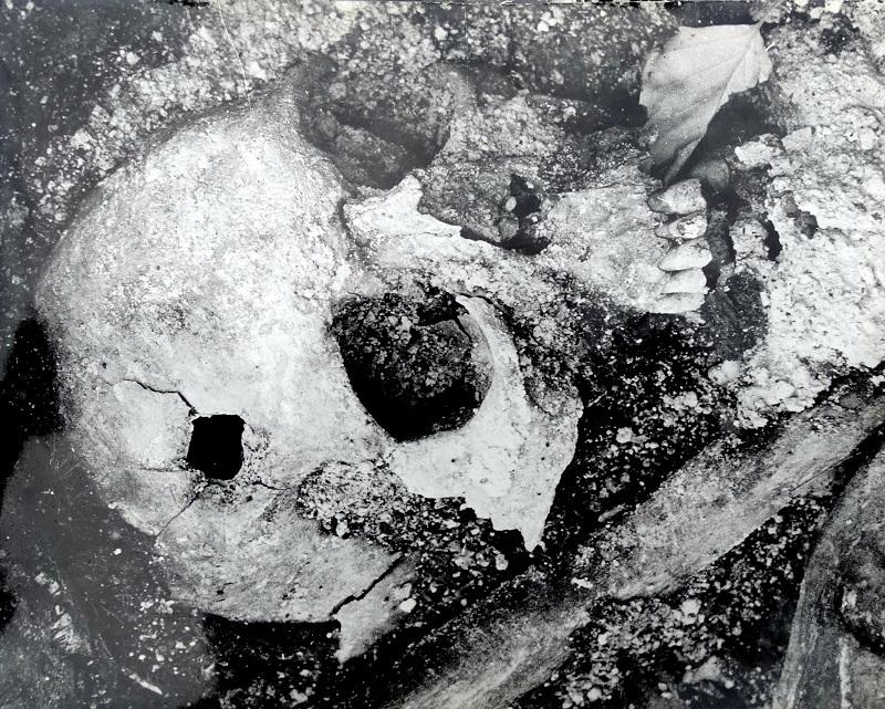 Череп с пулевым отверстием. Фотография из фонда Центра историко-культурного наследия Челябинска